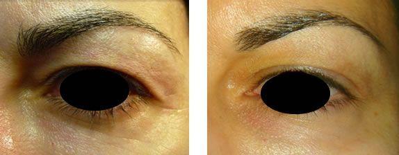 Blefaroplástica con láser de plasma antes y después