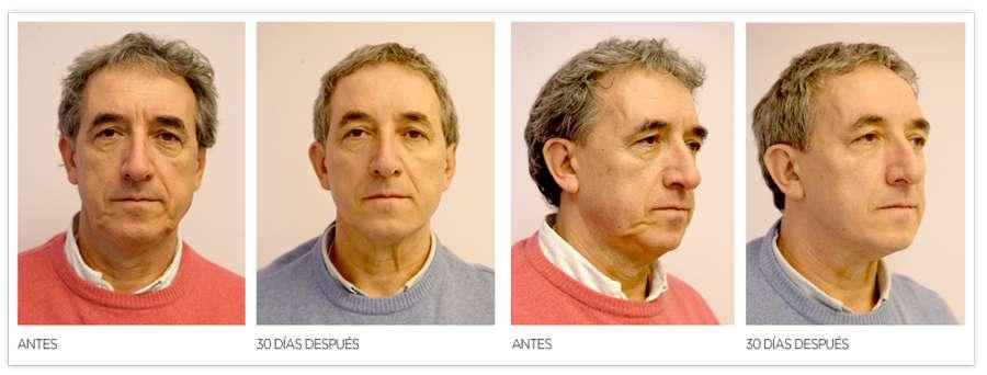 Antes y después tratamiento con Silhouette Soft