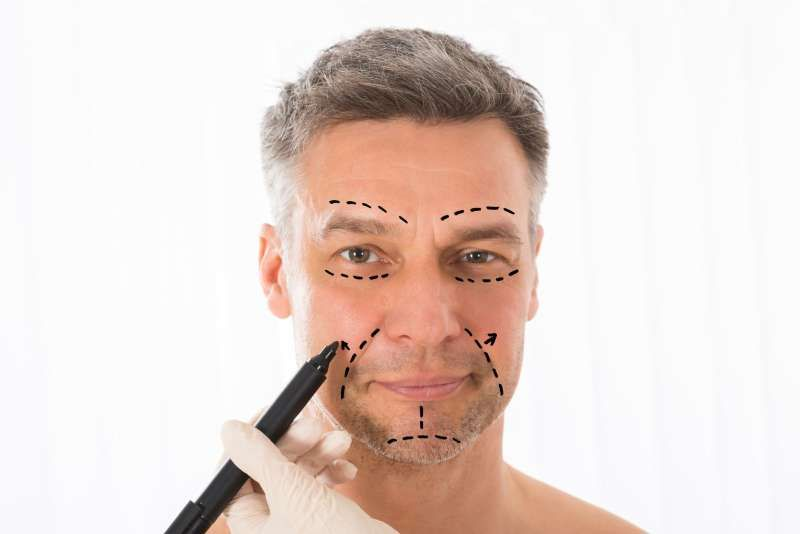 Erelle relleno facial