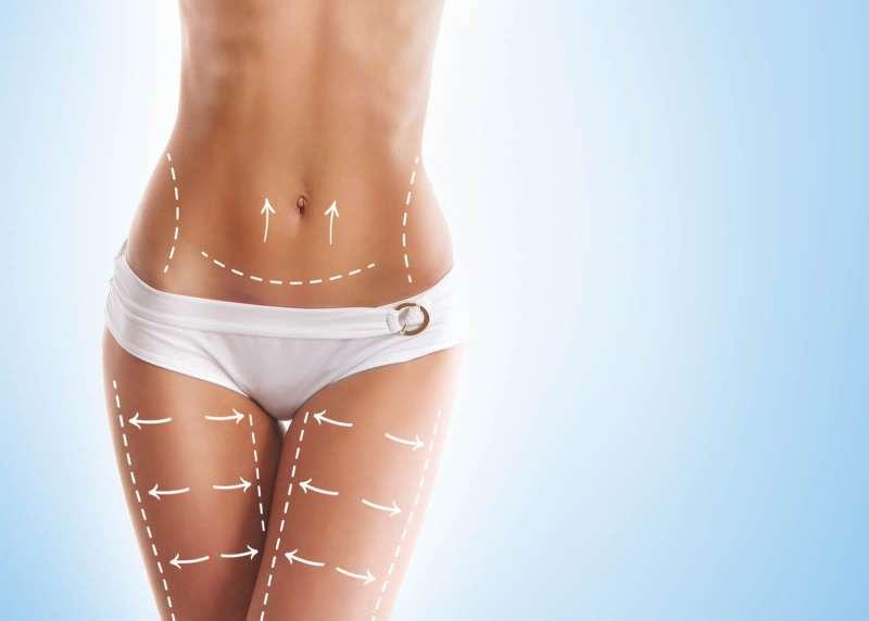 Cirugía de Liposucción