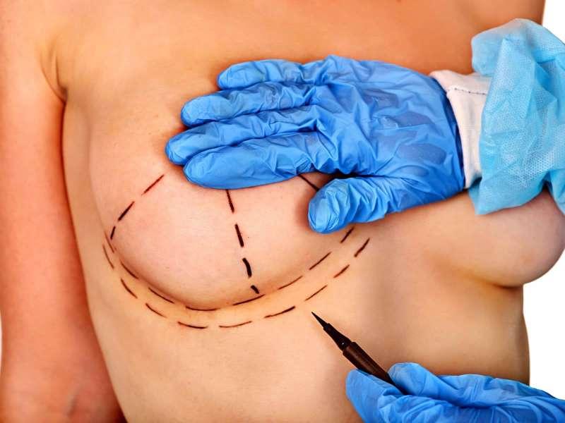 Mamoplastia de Reduccion de Pecho