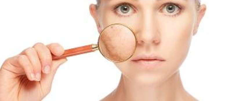 Rejuvenecimiento facial con IPL