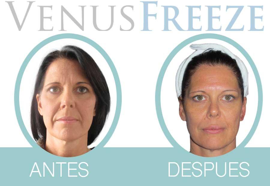 Tratamiento Venus Freeze