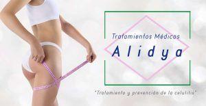 Celulitis y su tratamiento con Alidya