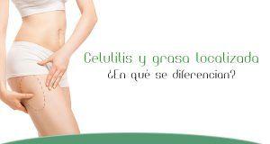 celulitis y grasa localizada