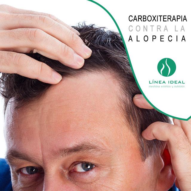 carboxiterapia contra la alopecia