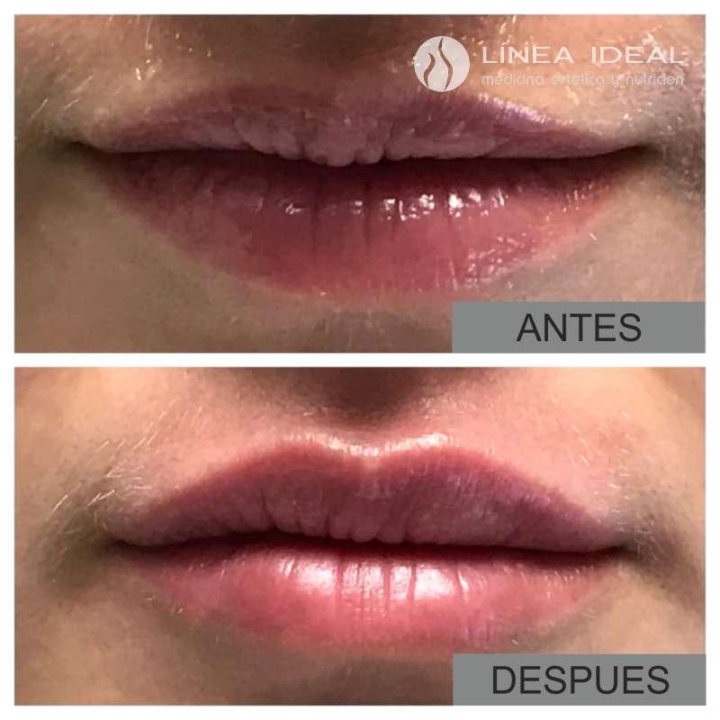 Aumento de labios con ácido hialurónico. Antes - Después