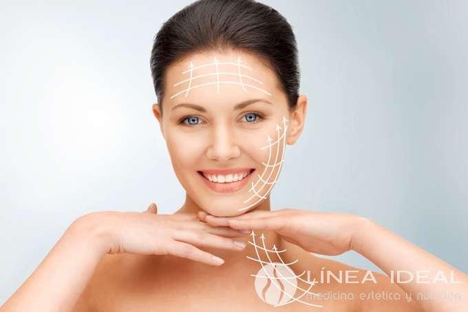 Lifting facial con Hilos tensores para el tratamiento de la flacidez de cara y cuello