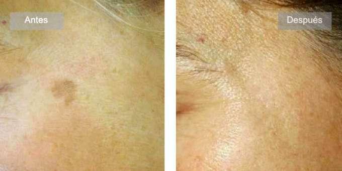 Antes y despues de tratamiento con B.R.A. Peeling