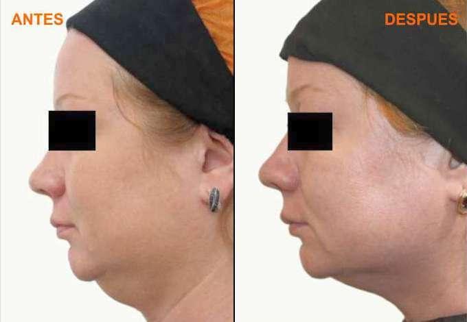 Resultado antes-despues tratamiento de la adiposidad localizada en cuello (papada) con Prostrolane