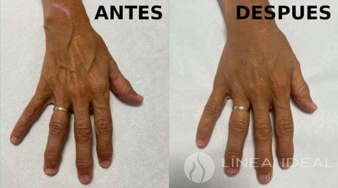 """Relleno de manos """"descarnadas"""" con ácido hialurónico - antes y después"""