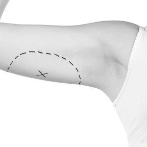 Braquioplastia, cirugía de lifting de brazos