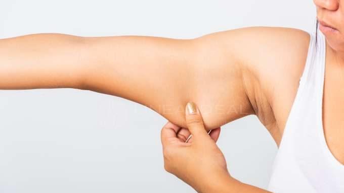 Lifting de brazos sin cirugía