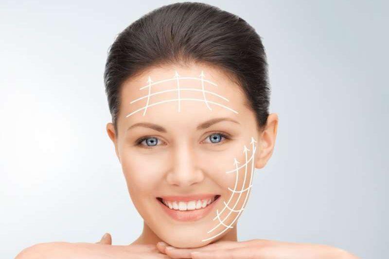 Lifting facial con radiofrecuencia