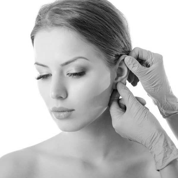 Otoplastia, cirugía de orejas