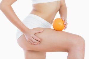 Tratamientos para reducir la celulitis