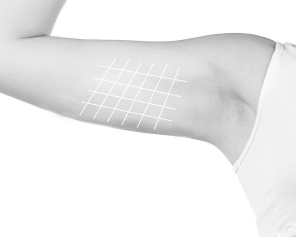 Flacidez en brazos con hilos tensores