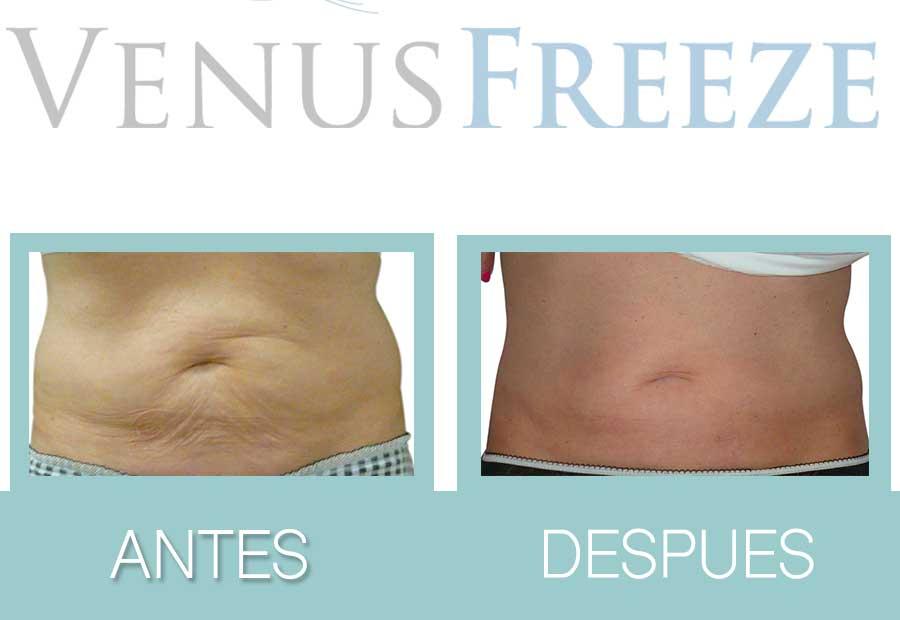 Antes y después de Venus Freeze Plus en abdomen