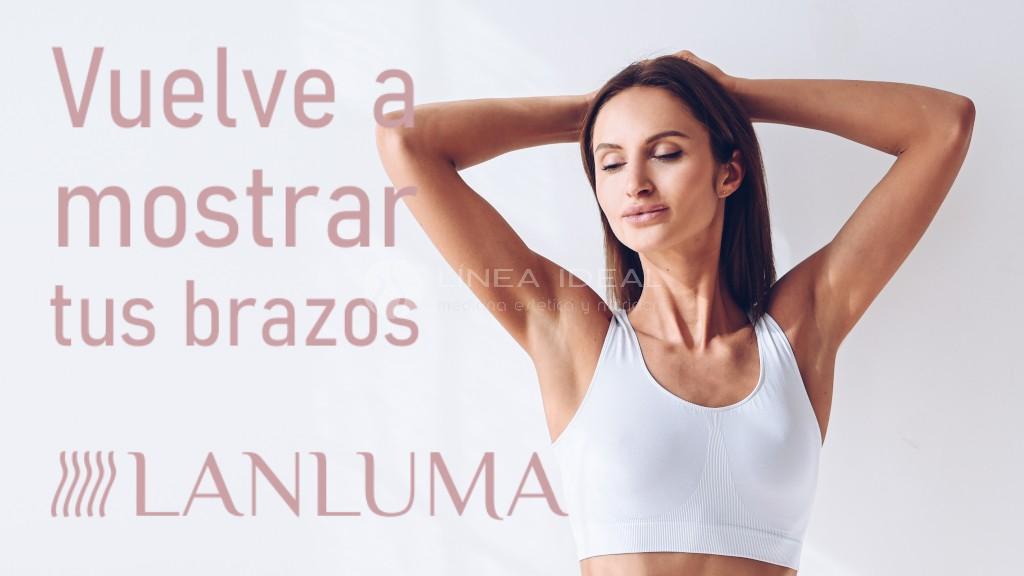 Tratamiento de la flacidez de brazos con Lanluma. Una piel más tersa, redensificada y firme. Mejora la flacidez y la celulitis por flacidez