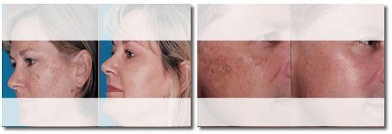 [Resultados antes-después de tratamiento de manchas faciales]