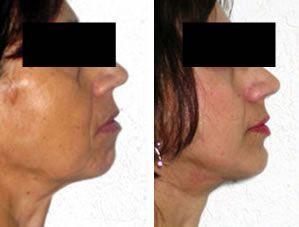 [Resultado antes-después de una cirugía de mentoplastia]