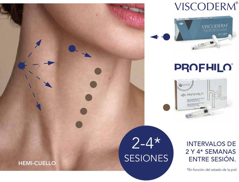 Técnica de aplicación de Profhilo & Viscoderm Hydrobooster en el cuello