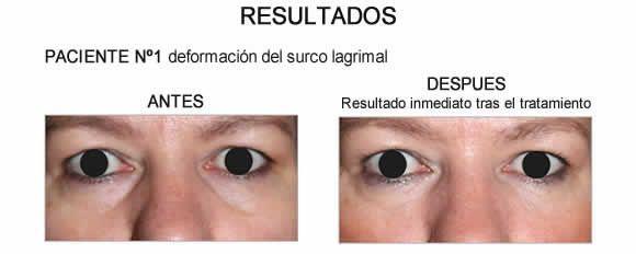[Resultados Antes-Después tratamiento con Redensity II del surco lagrimal