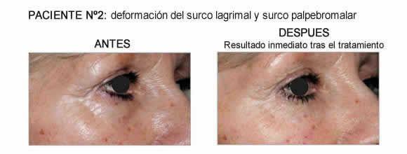 [Resultados Antes-Después tratamiento con Redensity II del surco lagrimal y surco palpebromalar]
