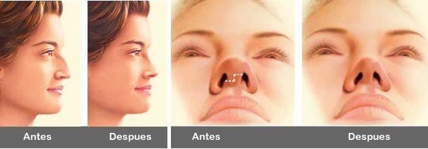 [Simulación de resultados antes-después de cirugía de rinoplastia]